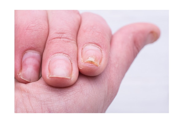 7. Indentation and Pits On Nails