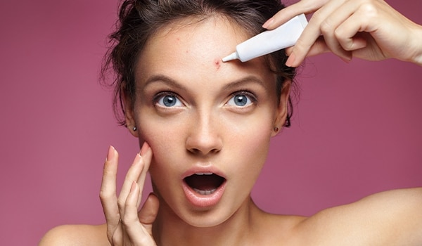 Your acne treatment could be making your skin sensitive! Know how you can deal with it