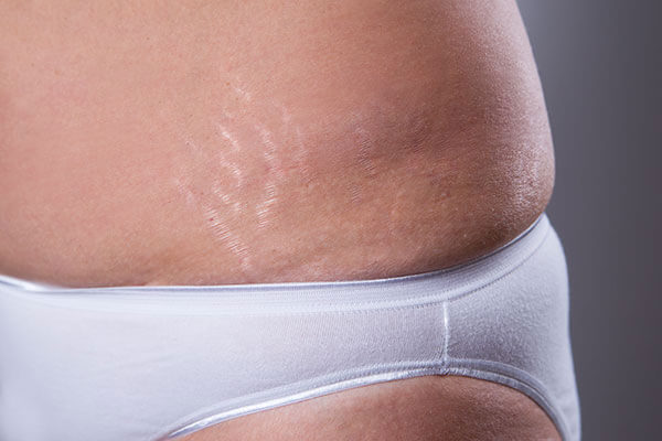 7. As a remedy for stretch marks