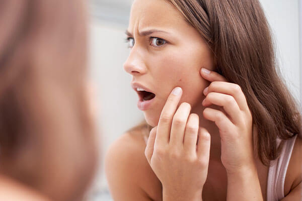 5. To get relief from acne
