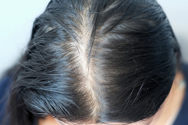 @kamakshee: My scalp gets oily too soon, what should I do?