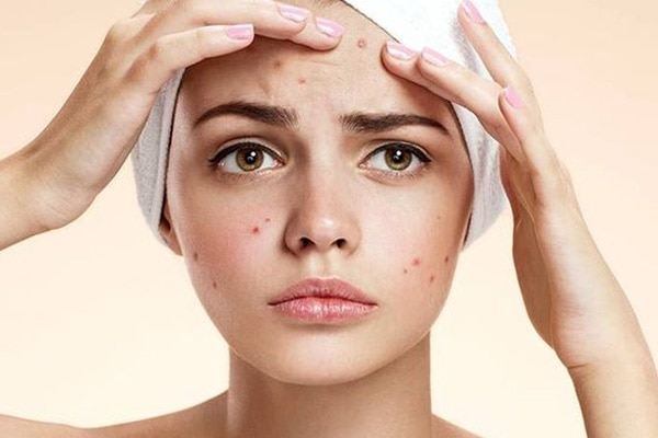 #4 Prevents breakouts