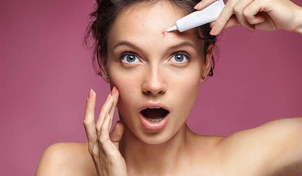 Banish acne right away with these DIY on-the-spot treatments