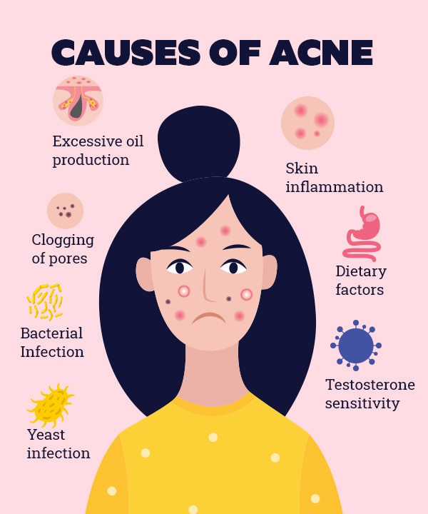 Rid acne to quickest way of get the 15 Natural