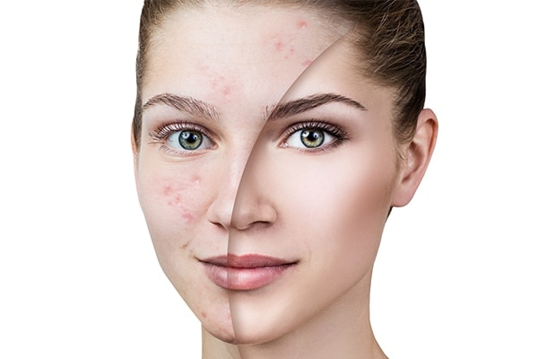 how to choose a foundation for your skin