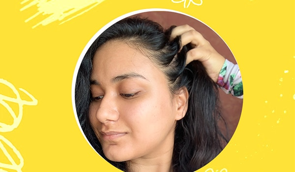 How I treated my dandruff problem without my hair turning rough