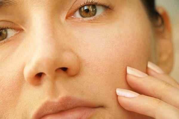 Pores appear larger
