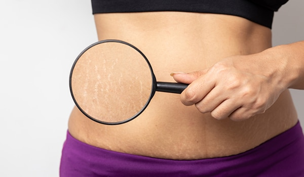 How to prevent or get rid of stretch marks