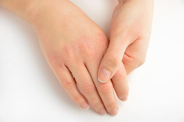 Dry, wrinkly skin
