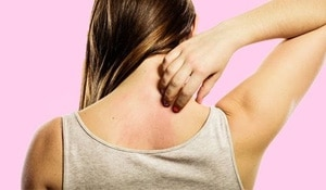 Treat rashes and eczema with these effective home remedies