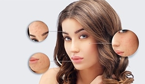 5 home remedies to get rid of those stubborn acne scars