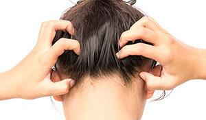Why dandruff gets worse in the winter and how to fight it