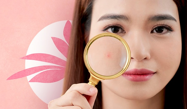 Treating blind pimples like regular zits? Here's why it won't work