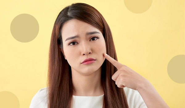 How to get rid of acne scars once and for all according to an expert