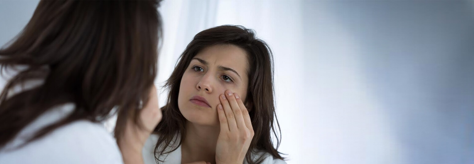 how to get rid of eye bags fast