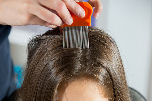 6 Home Remedies For How To Get Rid Of Head Lice | BeBEAUTIFUL