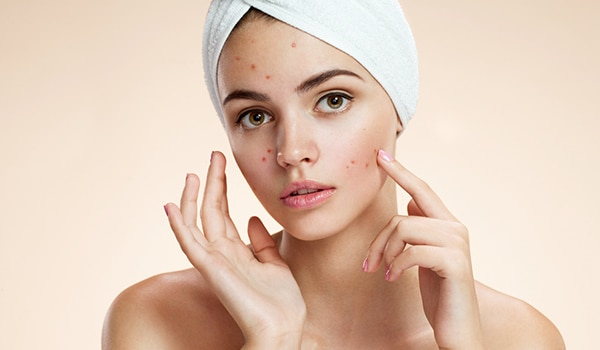 Own your scars—here is how you can learn to live with adult acne