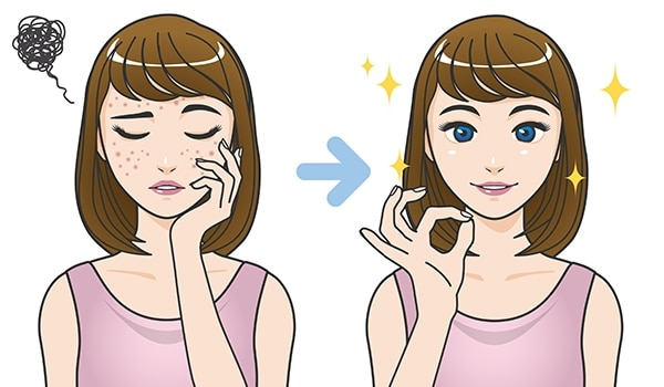 How To Remove Pimple Marks With Effective Home Remedies Bebeautiful