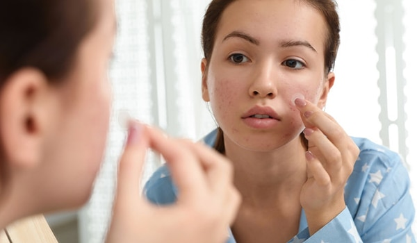 Are pimple patches truly effective? Let's find out