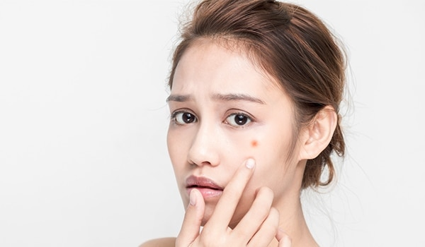 5 Things that are responsible for delaying your acne scars healing process
