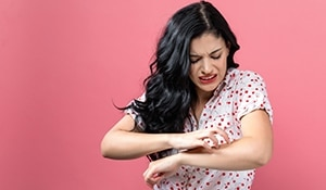 5 reasons you get rashes easily and how to treat them