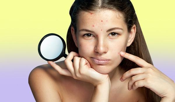 त्वचा की देखभाल से जुड़ी पांच ग़लतियां, जो मुहांसे की समस्या को बढ़ा देती हैं