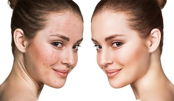 5 easy steps to conceal that red angry zit, like a pro...
