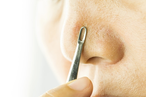 stop blackheads from appearing