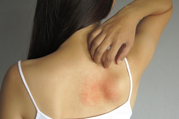 Heat rash or prickly heat