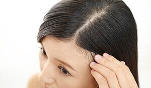 Tips to deal with an oily scalp in the summer