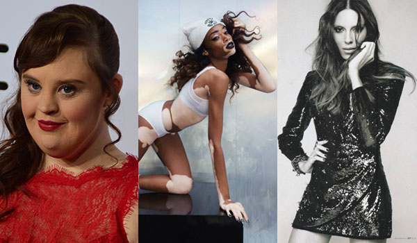 TRANSGENDER, VITILIGO & MUSCULAR DYSTROPHY – HOW THESE MODELS ARE MAKING IT BIG