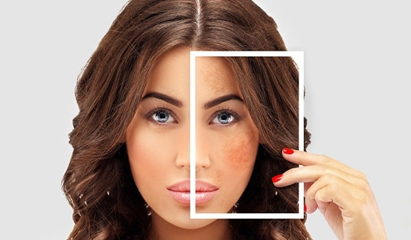 Treat hyperpigmentation with these natural power ingredients