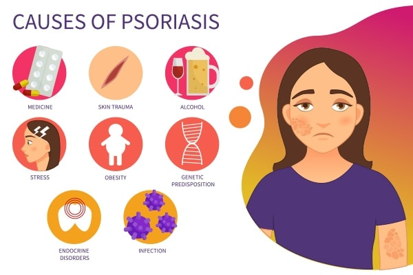 What are the common causes of psoriasis?